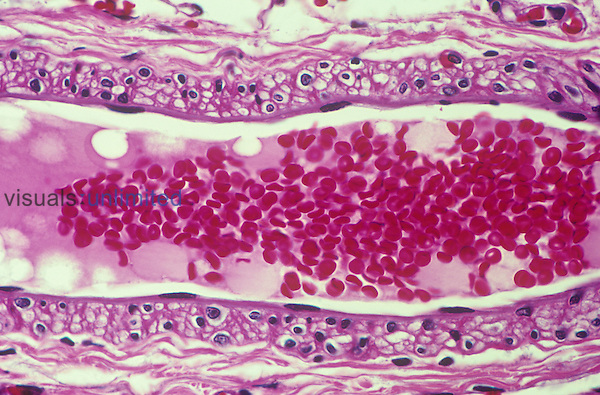 Human vein longitudinal section showing the enclosed red blood cells or erythrocytes. LM X200.