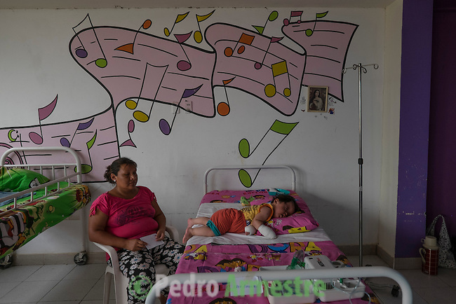2015-03-04. UN &Aacute;NGEL CON LAS ALAS PEGADAS. &copy; Calamar2/Susana HIDALGO &amp; Pedro ARMESTRE<br /> <br />   &Aacute;ngel C&eacute;sar Alonso, de 10 meses, naci&oacute; por ces&aacute;rea en Chiclayo (Per&uacute;) y los m&eacute;dicos le diagnosticaron s&iacute;ndrome de Apert, una enfermedad gen&eacute;tica que afecta a la forma de la cabeza y que hace que el peque&ntilde;o tenga los ojos abultados y padezca sindactilia (los dedos de las manos y de los pies pegados). El s&iacute;ndrome de Apert es una de las 7.000 enfermedades raras que existen en el mundo y su prevalencia oscila entre 1 y 6 casos por cada 100.000 nacimientos. La historia de este beb&eacute; es la historia de unos padres coraje, C&eacute;sar Cruz y Edita Jim&eacute;nez, que se desviven para que el peque&ntilde;o pueda tener la mejor calidad de vida posible. C&eacute;sar y Edita acudieron el pasado mes de marzo junto a su beb&eacute; al hospital San Juan de Dios, en Chiclayo, al reclamo de una campa&ntilde;a solidaria de intervenciones quir&uacute;rgicas organizadas por la Sociedad Espa&ntilde;ola de Cirug&iacute;a Pl&aacute;stica, Reparadora y Est&eacute;tica (Secpre) y la ONG Juan Ciudad. Los cirujanos espa&ntilde;oles le operaron las manos para separar unos dedos de otros. La intervenci&oacute;n dur&oacute; aproximadamente una hora y media y el peque&ntilde;o necesit&oacute; de curas posteriores.<br /> La operaci&oacute;n fue el primer paso en la mejora de la salud de &Aacute;ngel. Necesitar&aacute; al menos otra m&aacute;s para separar los dedos de los pies. Sus padres son humildes y apenas tienen recursos.  C&eacute;sar, el padre, trabaja levantando casas de adobe. Edita, la madre, vive para su hijo y le gustar&iacute;a en un futuro retomar su profesi&oacute;n de enfermera. &copy; Calamar2/Pedro ARMESTRE<br /> <br />  AN ANGEL WITH THE WINGS ATTACHED. &copy; Calamar2/Susana HIDALGO &amp; Pedro ARMESTRE<br /> <br /> Angel C&eacute;sar Alonso was born in Chiclayo (Peru) and was diagnosed 