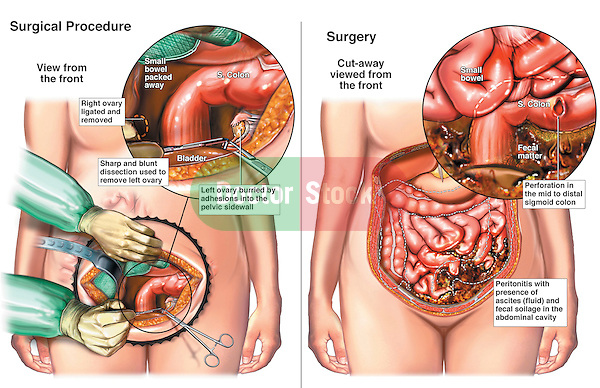 Bilateral Salpingo-oophorectomy with Perforation of the Colon. This medical illustration series shows an intra-operative view during a bilateral salpingo-oophorectomy surgery (removal of the ovaries). The second image reveals a post-operative bowel colon perforation and contamination of the abdomen by fecal contents.