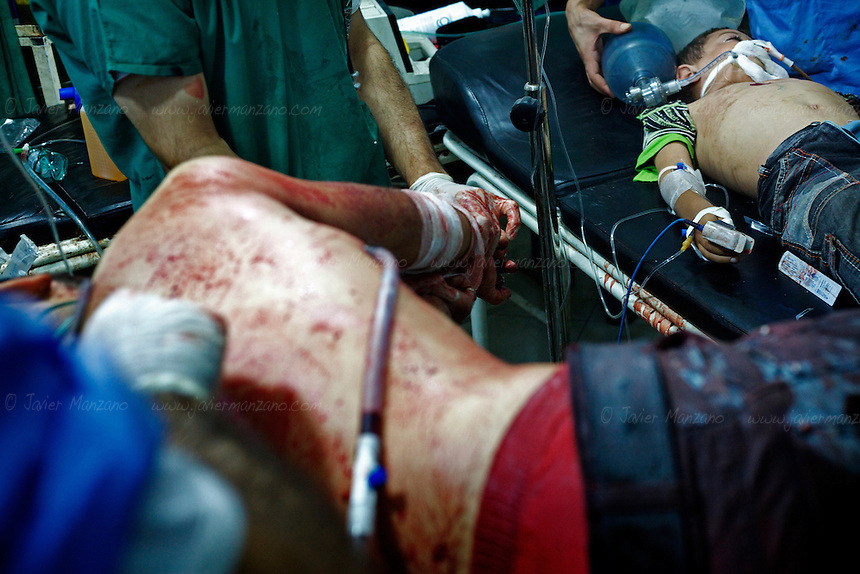 A man is treated from injuries sustained by shrapnel from a mortar round that hit a market in the Sha'ar neighborhood of Aleppo. A child lies unconscious next to this man - an earlier casualty of shrapnel wounds admitted 4 hours earlier. ..© Javier Manzano