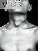 TB - cervical lymphadenitis