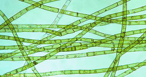 PX23-007d  Green Algae - Oedogonium  spp. 100x