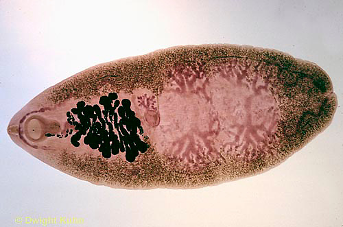 1Y03-013x  Human Intestinal Fluke - parasite/human  - Platyhelminthes - flatworm -  Fasciolopsis buski.
