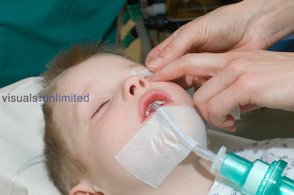 A young boy being prepared for an endosopic procedure.