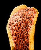 A long bone showing the compact bone ,yellow, surrounding the spongy or cancellous bone ,orange,.  SEM X40  **On Page Credit Required**