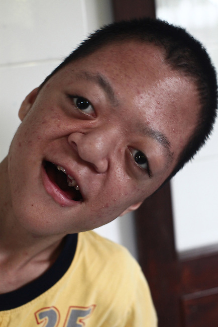 A disabled boy smiles as his picture is made in the Agent Orange children's ward of Tu Du Hospital in Ho Chi Minh City, Vietnam.  About 500 of the 60,000 children delivered each year at the maternity hospital, Vietnam's largest, are born with deformities, some because of Agent Orange, according to doctors. May 1, 2013.