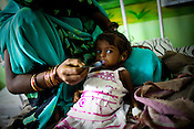 26 year old Anita feeds her 18 month malnourished daughter, Rajni in the 'Nutritional Reahabilitation Centre' at the Maharani Laxmibai Medical College in Jhansi, Uttar Pradesh, India. The Indian government spends $1.4 billion a year - on programs that include weighing newborn babies, counseling mothers on healthy eating and supplementing meals, but none of this is yeilding results. According to UNICEF, some 48% of Indian children, or 61 million kids, remain malnourished, the clinical condition of being so undernourished that their physical and mental growth are stunted. Photo: Sanjit Das/Panos for The Wall Street Journal.Slug: IMALNUT