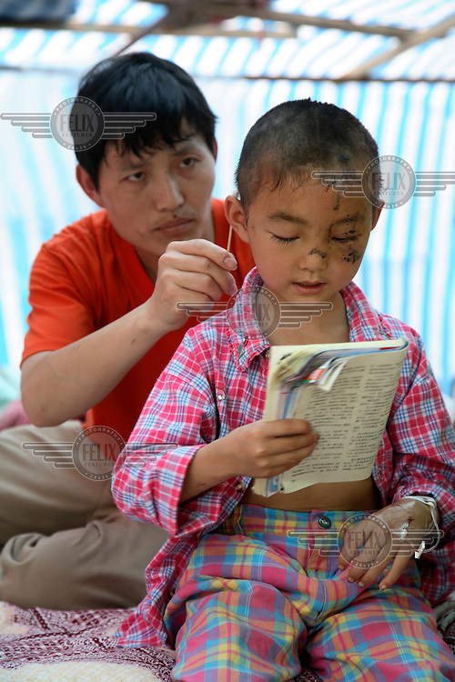 Guo Shuang, a six year old preschooler who sustained cuts to the face and head, is treated by her father at a temporary hospital shelter in Deyang. The recent Sichuan earthquake of 12/05/2008 measured 8.0 on the Richter scale.