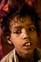 While high on 'solution', a street name for a sniffing substance made of tipex and paint thinner, Sunny, aged 10, sits on the floor at the mobile clinic in Jama Masjid on 4th October 2010, in New Delhi, India. His mother, who is also a 'solution' addict, stands next to him in wait to see the doctor at the mobile clinic. Picture: Suzanne Lee for The Australian.