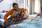 27 year old Pooja Devi is a polio patient. Here she poses for a photo at the Polio Ward of the St. Stephen's Hospital in Delhi, India. Dr. Mathew Varghese is the polio specialist who is providing path breaking technology and making polio patients walk, sometimes first time in their lives.