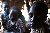 Yaeda Valley, Tanzania: Six-year-old Elia, a Hadzabe boy who suffers from tuberculosis. The Hadzabe are one of the few remaining tribes of practicing hunter gatherers on Earth. There are fewer than 1,500 Hadzabe hunter left, all corraled in a corner of this northern Tanzania valley. Many have been ravaged by diseases brought by neighboring tribes, missionaries, tourists and other visitors.  (PHOTO: MIGUEL JUAREZ LUGO)