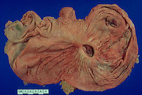This specimen shows ulceration of the mucous membrane of the stomach. This is usually called a stomach or gastric ulcer. It can be treated by medication but sometimes requires surgery.