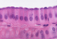 Mammal gallbladder section with columnar epithelium. LM X360