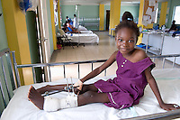 Devastation after the January 12, 2010 earthquake. Children being treated at St. Damien's Hospital. Sylfanie Morijene, with leg injuries, 2/2/10