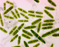 Green Algae Netrium, a cylindrical single celled saccoderm Desmid containing two lobed chloroplasts. LM