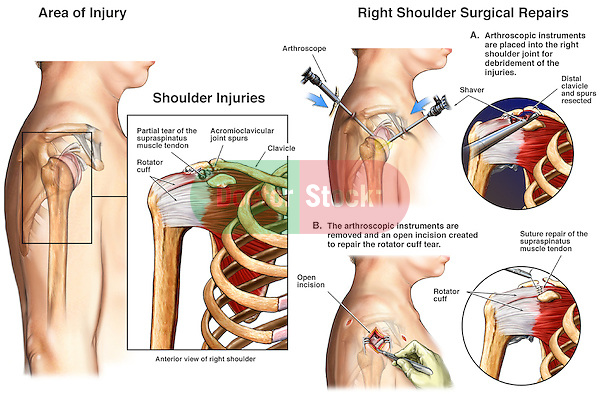 Shoulder Joint Surgery - Rotator Cuff Tendon Repair. This medical illustration series pictures classic elements of post-traumatic shoulder impingement syndrome. Detailed views of the right shoulder describe the pre-operative traumatic spurring to the undersurfaces of the acromio-clavicular (ac) joint space with several steps of the standard arthroscopically assisted, and open decompression surgery with removal of impingement.