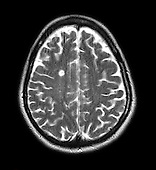 MRI showing multiple sclerosis in a brain section of a 42 year old female. There are multiple foci of oblong shaped periventricular and pericallosal white matter lesions of multiple sclerosis but no evidence of plaque enhancement.