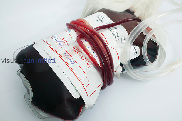A blood bag containing group AB- (Negative) blood..AB- blood contains both AB red blood cells with an abscence of RhD antigen of the Rhesus blood group system. Royalty Free