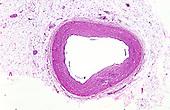 Human coronary artery section. LM X6
