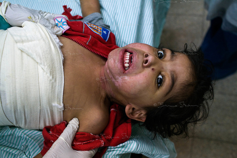 Gaza city, Jan 24 2009.Shifa hospital, burned patients ward..Rawenn Abu Tabegh was burned to the 3rd degree over 45% of her body by kerozen in a domestic accident just before the war. No hospital in Gaza can perform the necessary skin grafts, but because of the war, she couldn't be moved elsewhere; she is in very intense pain as doctors and medics change her dressings.