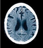 CT scan 84 year old male with Alzheimer's disease showing brain atrophy and small gyri and large sulci.
