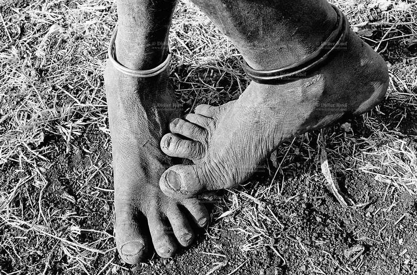 Ethiopia. South Omo Zone. Salamago district. Hana (little village). Bodi tribe. Nomadic. Nomad's feet which have been walking barefoot for years in the bush. The man  wear smetal bands around his ankles. The Bodi tribe is located in the Debub Omo Zone (South Omo Zone) of the Southern Nations, Nationalities and Peoples's région. © 2001 Didier Ruef