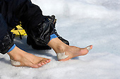 Miles of hiking on Greenland's ice sheet in hard plastic mountaineering boots took their toll on one researcher's feet.