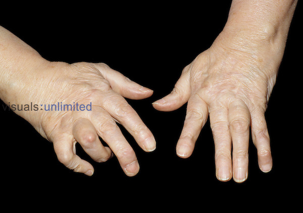 Osteoarthritis of the human hands showing Heberden's node on proximal interphalangeal (PIP) joints, middle joints of the fingers.