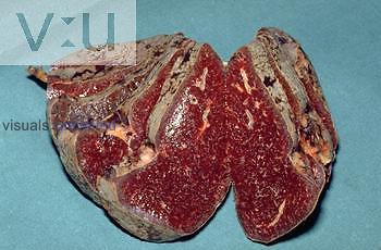 Infarct of the Spleen