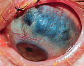 Staphyloma or bulging of the uvea into a thinned sclera.