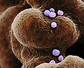 Methicillin-resistant Staphylococcus aureus Bacteria (MRSA), several dividing by fission. SEM