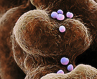 Methicillin-resistant Staphylococcus aureus Bacteria (MRSA), several dividing by fission. SEM