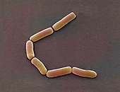,Bacillus subtilis, Bacteria. SEM X17,000  .B. subtilis is commonly found in the soil. The bacteria is surrounded by an endospore making it able to withstand hostile conditions. It is not normally a pathogen but if it does enter the body through contaminated food or soil, it can cause illness.
