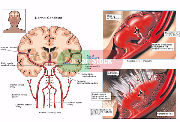 Cerebral artery anatomy