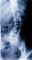 X-RAY OF SPINE SHOWING SCOLIOSIS<br />
