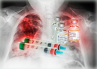 H1N1 flu vaccine vials and syringes superimposed over a chest x-ray of a patient with influenza who developed pneumonia