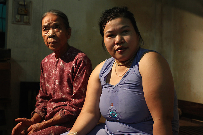 Tran Thi Ty Na, 33, sits on a bed with her aunt at their home in Da Nang, Vietnam. Na and her older brother are second-generation victims of dioxin exposure, the result of the U.S. military's use of Agent Orange and other herbicides during the Vietnam War more than 40 years ago. Na's father, who served as a soldier during the conflict, died years ago from illnesses caused by Agent Orange. Her mother and aunt are now the sole caregivers for herself and her older brother, who is completely and mentally disabled because of their father's exposure. Na has developed muscular dystrophy and other conditions like her brother and is angry at the cruel fate that awaits her. The family gets no government support, and Te, the mother, wonders who will take care of her children when she is gone. She calls the U.S. government ?heartless? for using poisonous herbicides during the war, and says she wishes the U.S. military would have killed her children right away instead of leaving them to suffer decades later. ?If they die in the war, this is normal because it is a war,? Te says. ?But why did the U.S. government spray this Agent Orange?? The Vietnam Red Cross estimates that at least 3 million Vietnamese suffer from illnesses related to dioxin exposure, including at least 150,000 people born with severe birth defects since the end of the war. The U.S. government is paying to clean up dioxin-contaminated soil at the Da Nang airport, which served as a major U.S. base during the conflict. But the U.S. government still denies that dioxin is to blame for widespread health problems in Vietnam and has never provided any money specifically to help the country's Agent Orange victims. March 18, 2013.