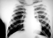 A chest x-ray revealing a large density in the right part of the chest wall.. Royalty Free