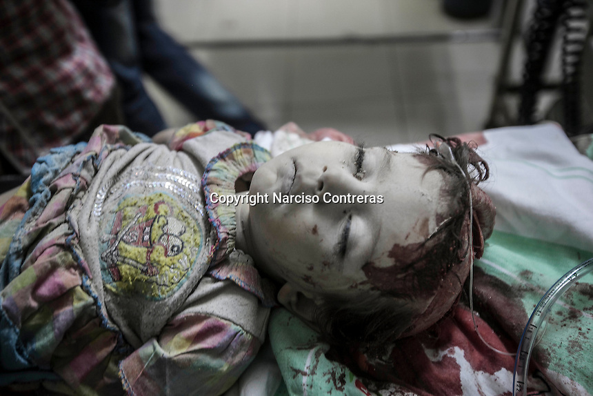 A Syrian child arrives at a hospital as she is in the throes of death due her head was wracked by a bomb explosion in the residential neighborhood of Tarik Albab while the Assad's army was shelling the FSA headquarters.