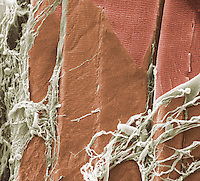 Surface view of three muscle fibers showing the transverse striations where the external membrane or sarcolemma has ben removed. Some stringy sections of the external connective tissue layer or endomysium are also visible. SEM X635  **On Page Credit Required**
