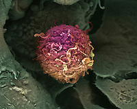Cancer cell, breast, SEM X4,000
