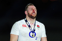 A bloodied James Haskell of England looks on after the match. RBS Six Nations match between France and England on March 19, 2016 at the Stade de France in Paris, France. Photo by: Patrick Khachfe / Onside Images