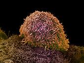 Prostate cancer, SEM X4,500