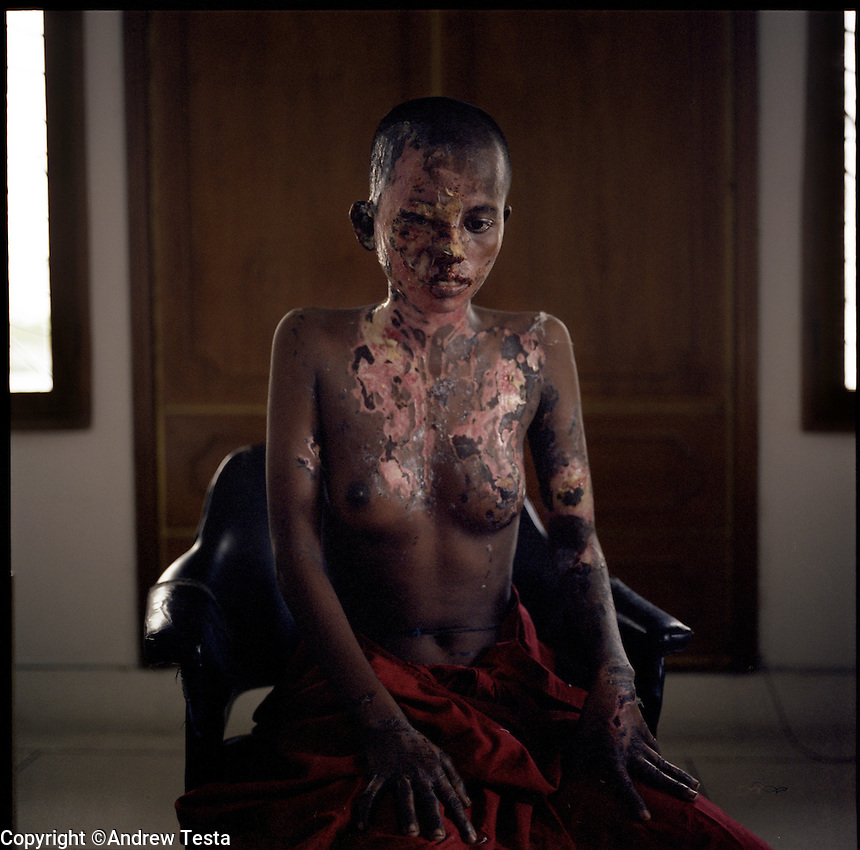 BANGLADESH. Dhaka. June 2005..Nobis Begam. 15 Years old. Photographed three days after acid was thrown in her face for refusing a marriage proposal..©Andrew Testa