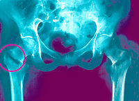 A colored x-ray image of a bilateral fractured neck of femur. The neck of femur is the thigh bone that forms the hip joint. This is commonly fractured in falls in the elderly, especially due to osteoporosis