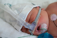 Premature baby Leon-Alexandre Vachon is hooked to various machines at CHUL hospital in Quebec City Saturday January 22, 2011.