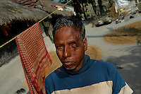 Rabin Majumdar was attacked by tiger while at work inside the deep forest and miraculously could escape death. He used to collect honey, catch fish and crab from the creeks. After this incident he never dared to enter the forest. Sunderban, Dec 2005, West Bangal, India.  Arindam Mukherjee
