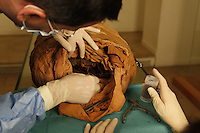 "GEORGES LABIT MUSEUM, TOULOUSE, FRANCE - MARCH 03 - EXCLUSIVE : A view from behind of Professor Pomar executing the tissue sampling operation in the orifice left by the head of the Egyptian mummy on March 3, 2009 in the Georges Labit Museum, Toulouse, France. The Egyptian mummy arrived in Toulouse in 1849, encased in a sarcophagus labelled ""In-Imen"" from the 7th or 8th century BC. It is preserved at the Labit Museum since 1949. The mummy is now the subject of a very rare tissue sampling operation to determine its datation.  (Photo by Manuel Cohen)"