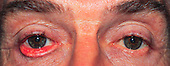 Ectropion or outward turning of the eyelid.