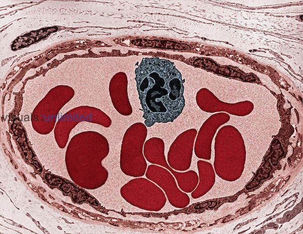 Cross-section of a blood vessel that contains a white blood cell or leukocyte and several red blood cells or erythrocytes. TEM.